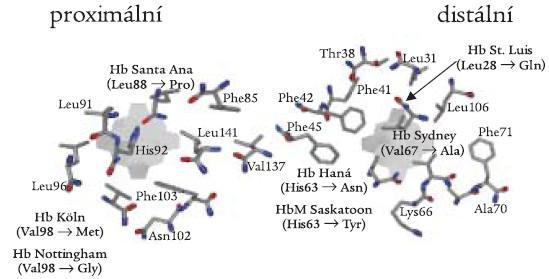 Proximální a distální strana hemové kapsy se schematickým znázorněním aminokyselinových záměn β-globinové podjednotky zjištěných v české a slovenské populaci.