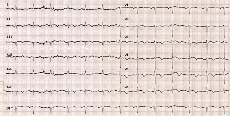 EKG pacientky při propuštění