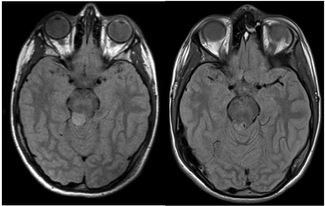 Vlevo: 10letý pacient se stereobiopticky verifikovaným astrocytomem stupeň I, velikost nádorového objemu 1 500 mm<sup>3</sup>, minimální aplikovaná dávka 25 Gy v 5denních frakcích; vpravo: kontrolní vyšetření magnetickou rezonancí za čtyři roky, bez známek pozdní toxicity.