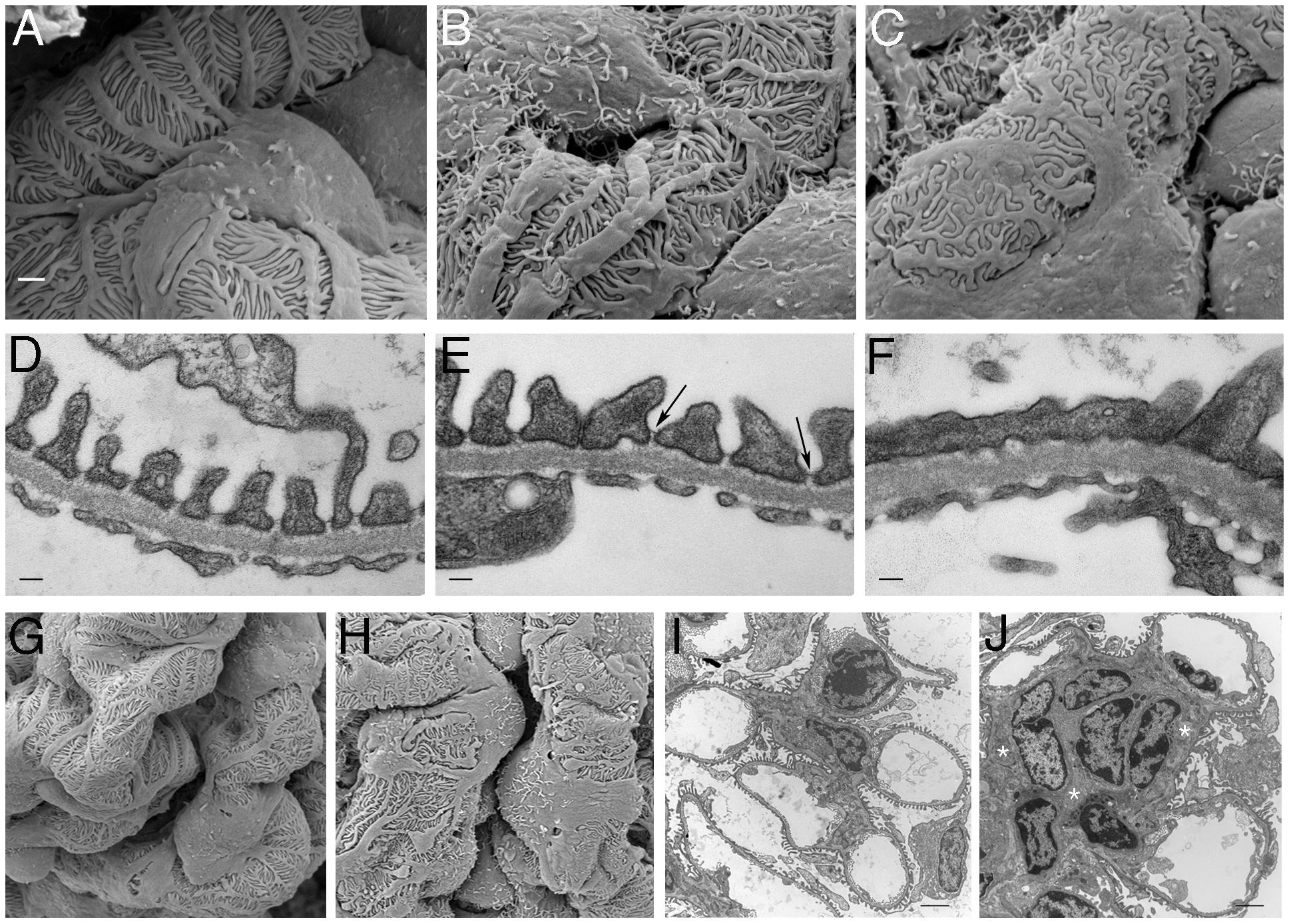 Ultrastructural Analysis of PTIP− Kidneys.