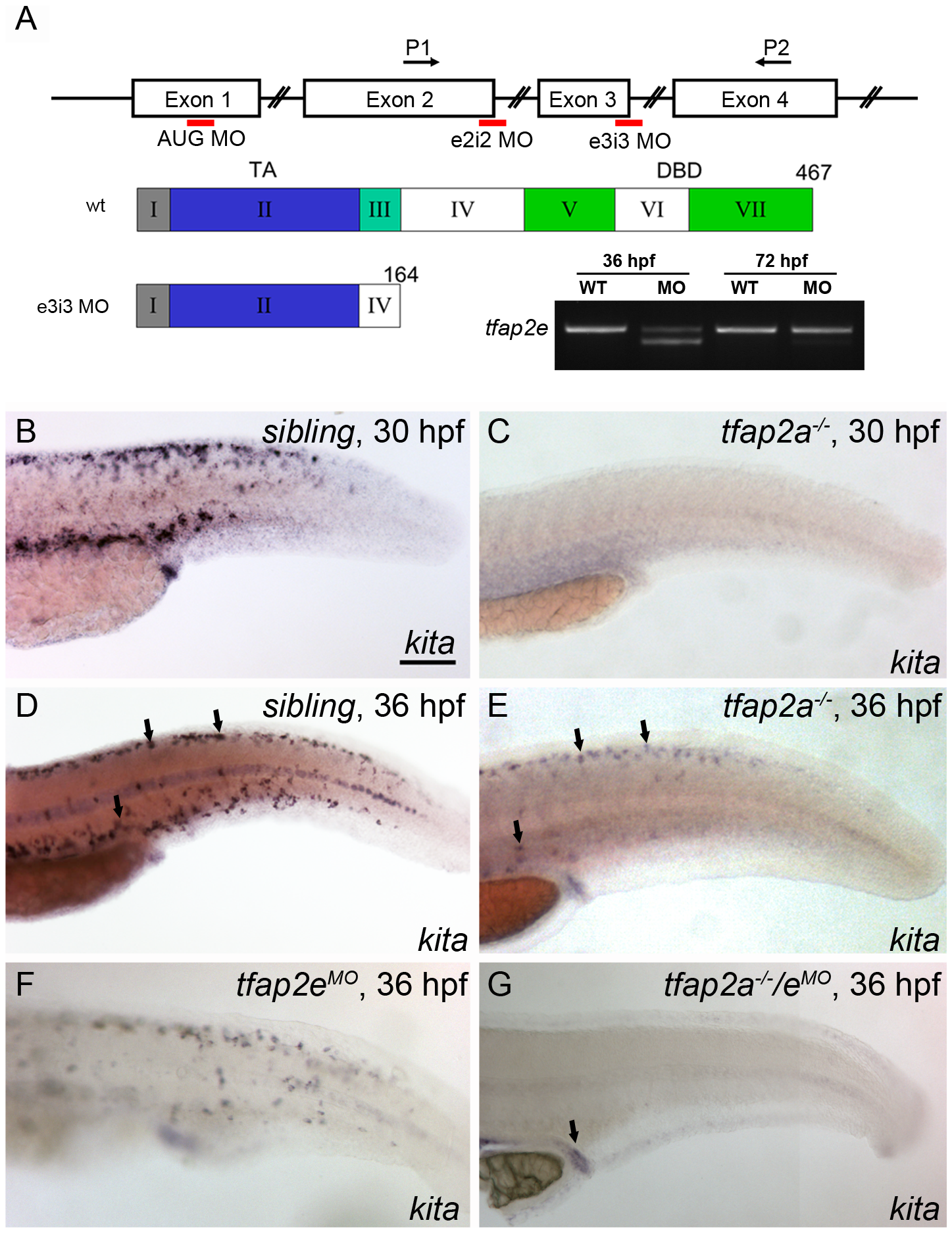 Expression of <i>kita</i> in melanophores is dependent on Tfap2a and Tfap2e.