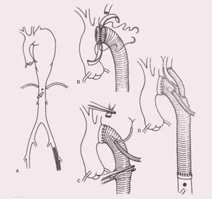 Náhrada descendentní hrudní aorty a části oblouku protézou.