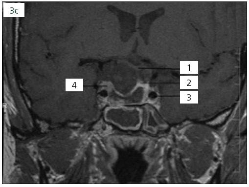 Obr. 3c. Po operační MR prokazující rozsáhlou resekci adenomu hypofýzy, ale reziduální hmoty adenomu vpravo těsně u kavernózního splavu, 1. chiazma, 2. v.s. adenohypofýza, 3. arteria cerebri interna, 4. reziduální adenom hypofýzy.