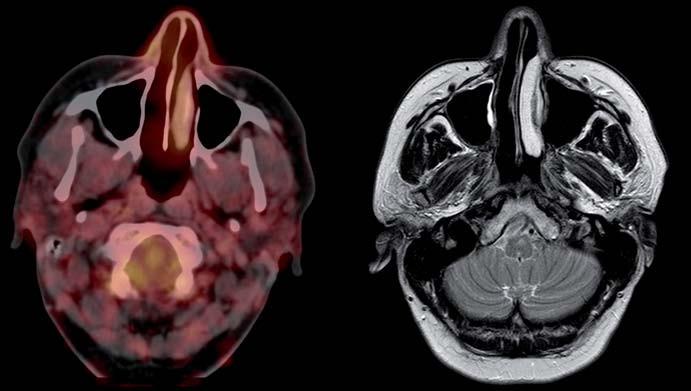 Po operačním zákroku, FDG-PET/CT i MRI vyšetření bez patologického nálezu.