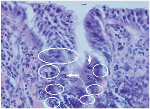 Apoptotická aktivita v horní části krypt pokročilého adenomu – mitotická figura (šipka), apoptotická tělíska (v kroužku). Hematoxylin-eozin, originální zvětšení 600×. Fig. 3. Apoptotic activity in the upper part of the crypts in advanced adenoma – mitotic figure (arrow), apoptotic bodies (in circle). Haematoxylin-eosin, original magnification ×600.