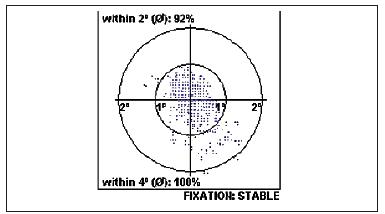 Centrální stabilní fixace po úspěšné operaci IMD