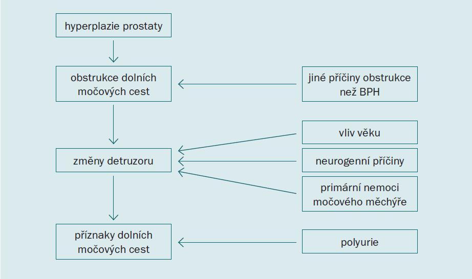 Patofyziologie BPH zahrnující komplexní interakci mezi uretrální obstrukcí, detruzorovou funkcí a produkcí moči [3].