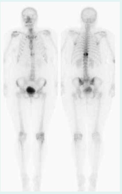 Scintigrafie (září 2012) – solitární metastáza osteolytického charakteru v Th10