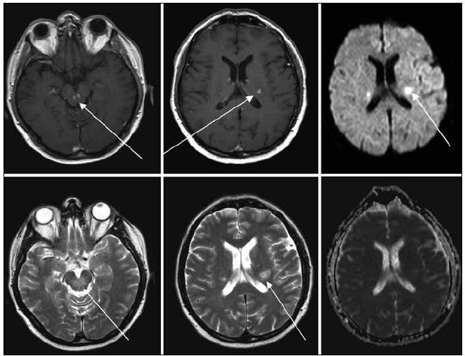 MR zobrazení mozku z 22. 1. 2009, tedy před léčbou. Na MR je viditelné postižení kmene, mozečku a bílé hmoty supratentoriálně, ložiska T1 hypo, T2 hyperintenzní, postkontrastně se sytící, restrikce difuse na DWI, bez korelace na ADC.