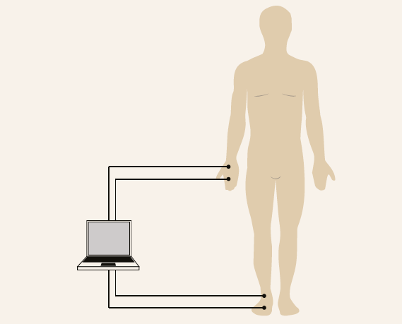 Two electrodes are placed on the right hand and foot for bioimpedance measurement.<br> Modified according to [13]