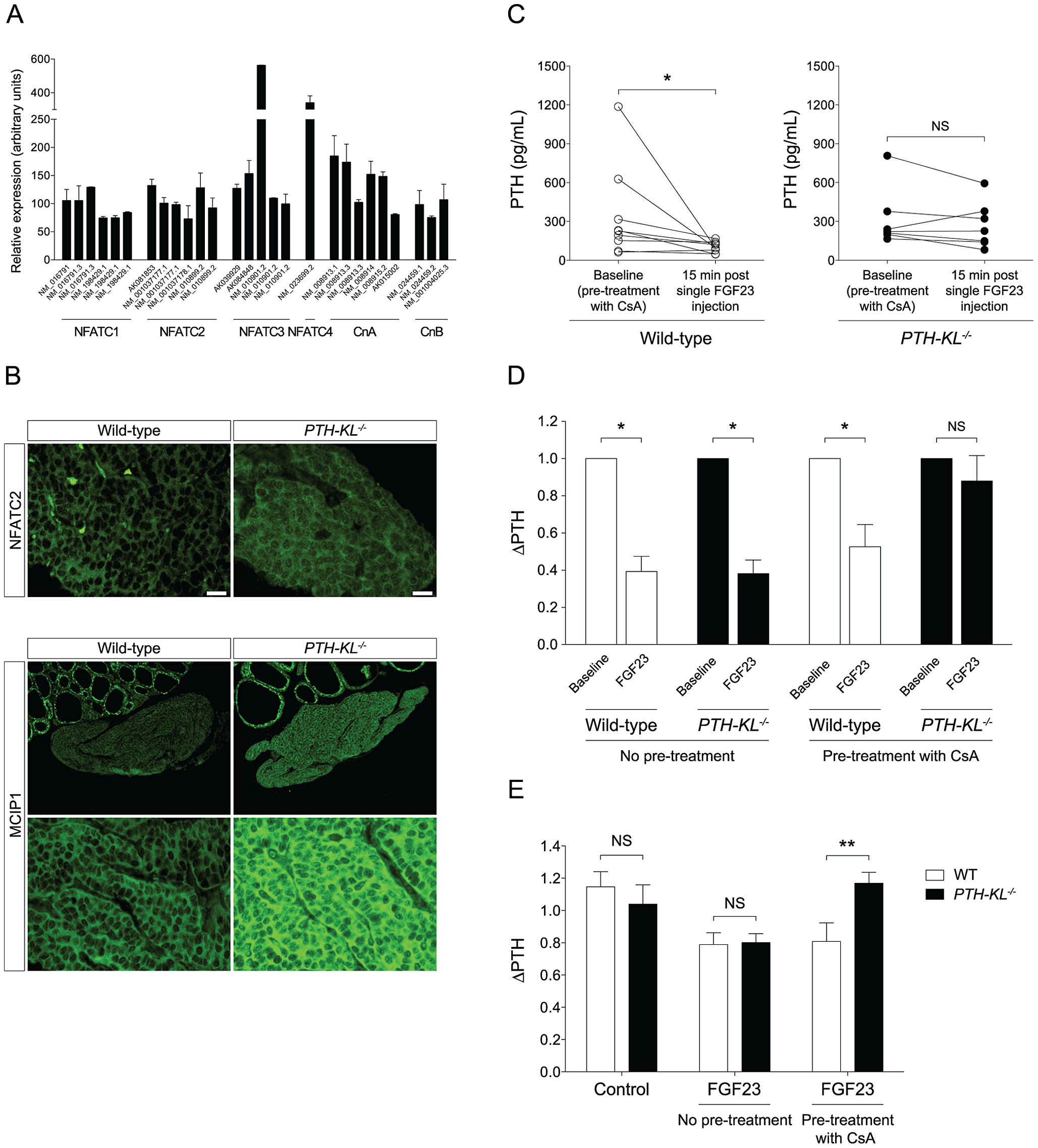 Presence of the calcineurin-NFAT pathway and the impact of cyclosporin A on FGF23 treatment.
