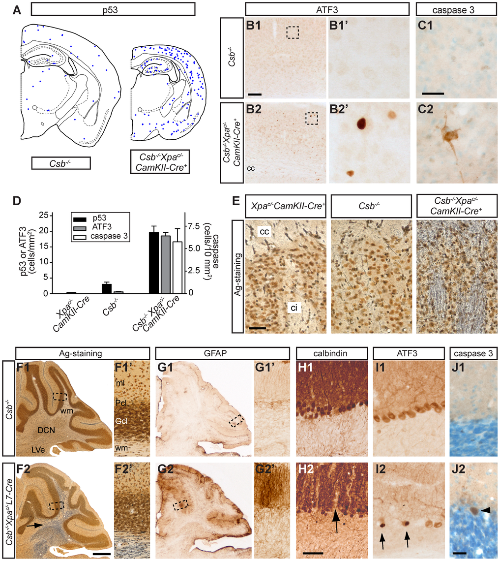 Neurodegenerative changes in forebrain neuron-specific and Purkinje cell-specific knockout of <i>Xpa</i> in <i>Csb<sup>−/−</sup></i> mice.