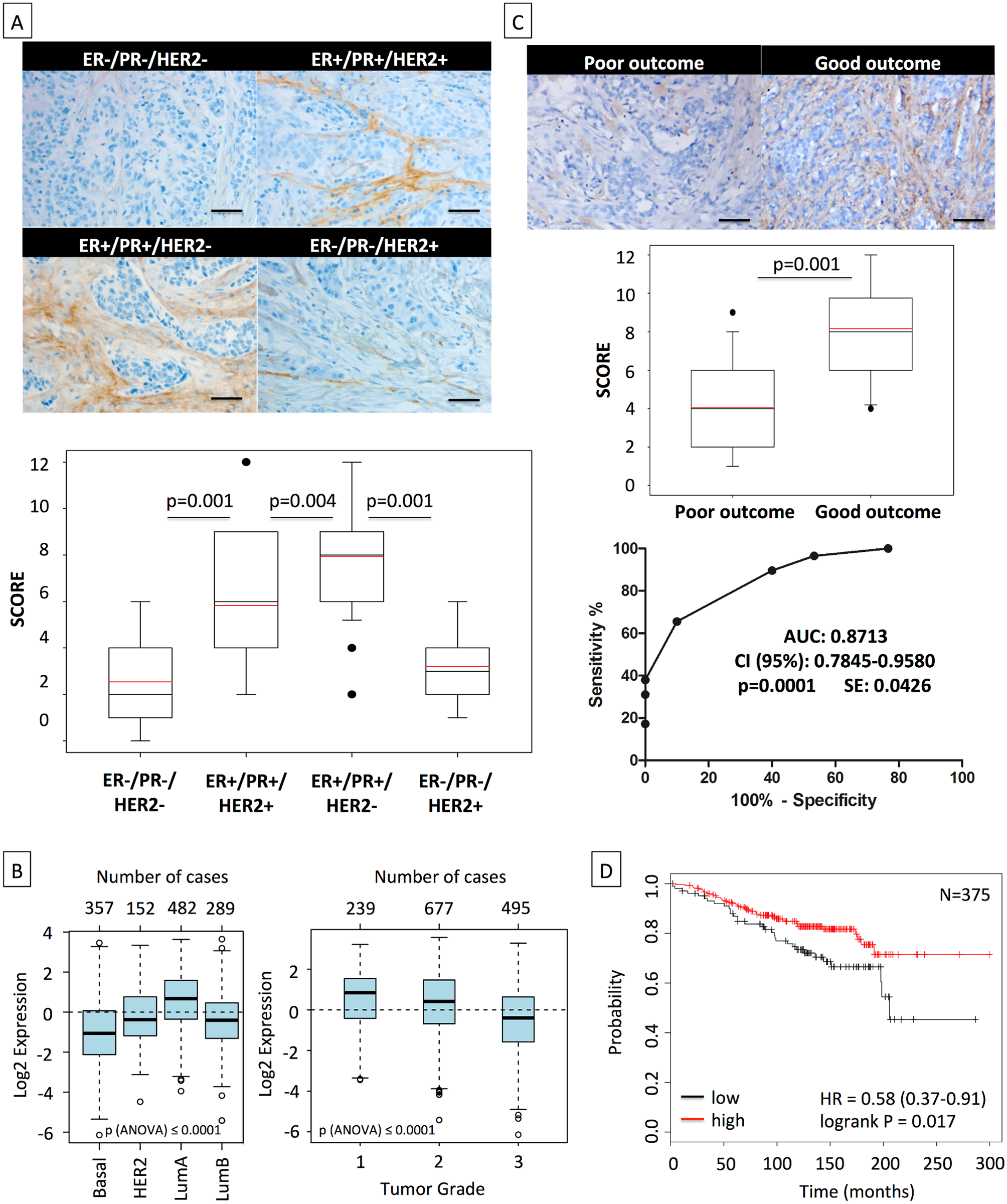 High asporin expression in human breast cancer matches with luminal-like tumor type and good patient outcome.