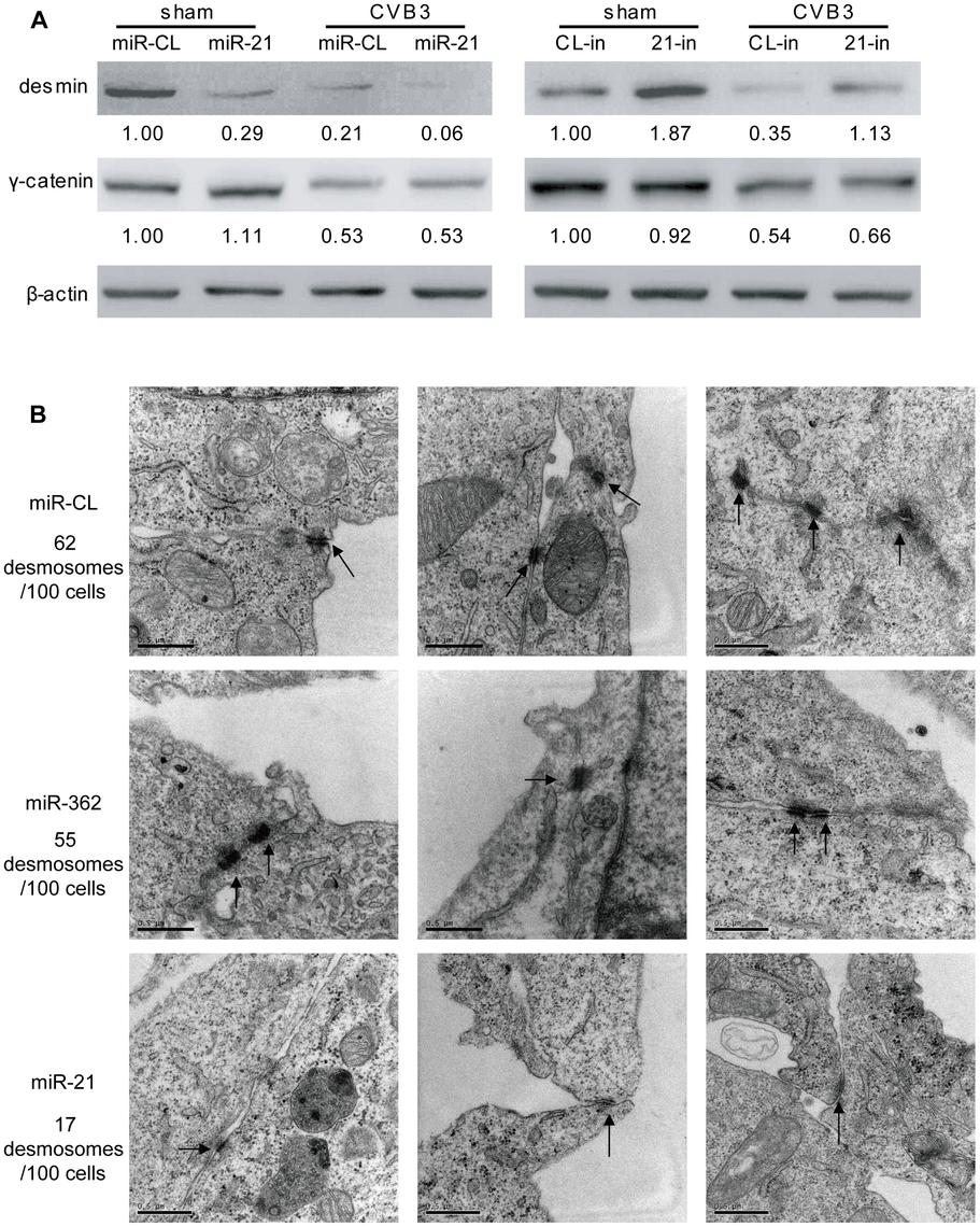 miR-21 downregulates desmin and disrupts desmosome structures.