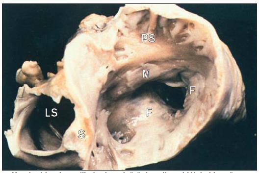 Karcinoid srdce s fibrózním ztluštěním trikuspidální chlopně.