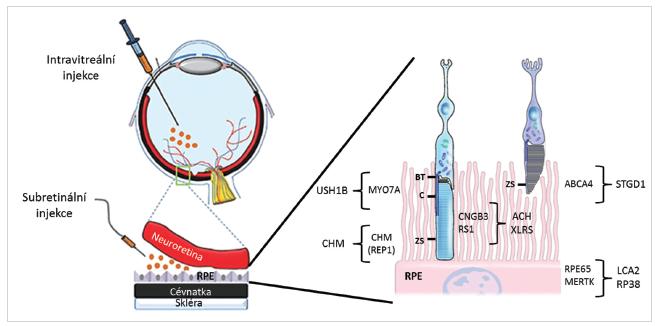 Způsoby aplikace virových vektorů a lokalizace proteinů kódovaných geny, jejichž mutace způsobují retinální onemocnění a pro které probíhají klinické zkoušky s genovou terapií (převzato z  ttp://www.retinalphysician.com a 53).
