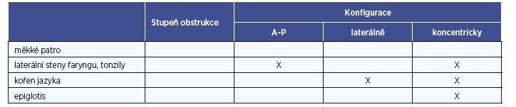 Hodnocení míst obstrukce v HCD (Kezirian 2011).