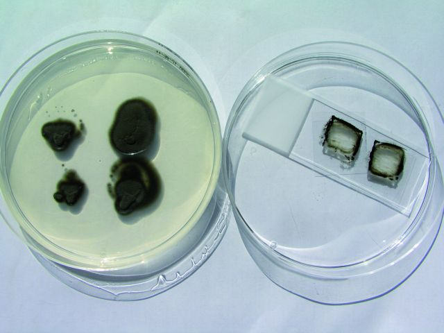 Cladophialophora bantiana – vpichová kultura a mikrokultura na Sabouraudově agaru. Fig. 1. Cladophialophora bantiana – the puncture culture on the Sabouraud´s soil.