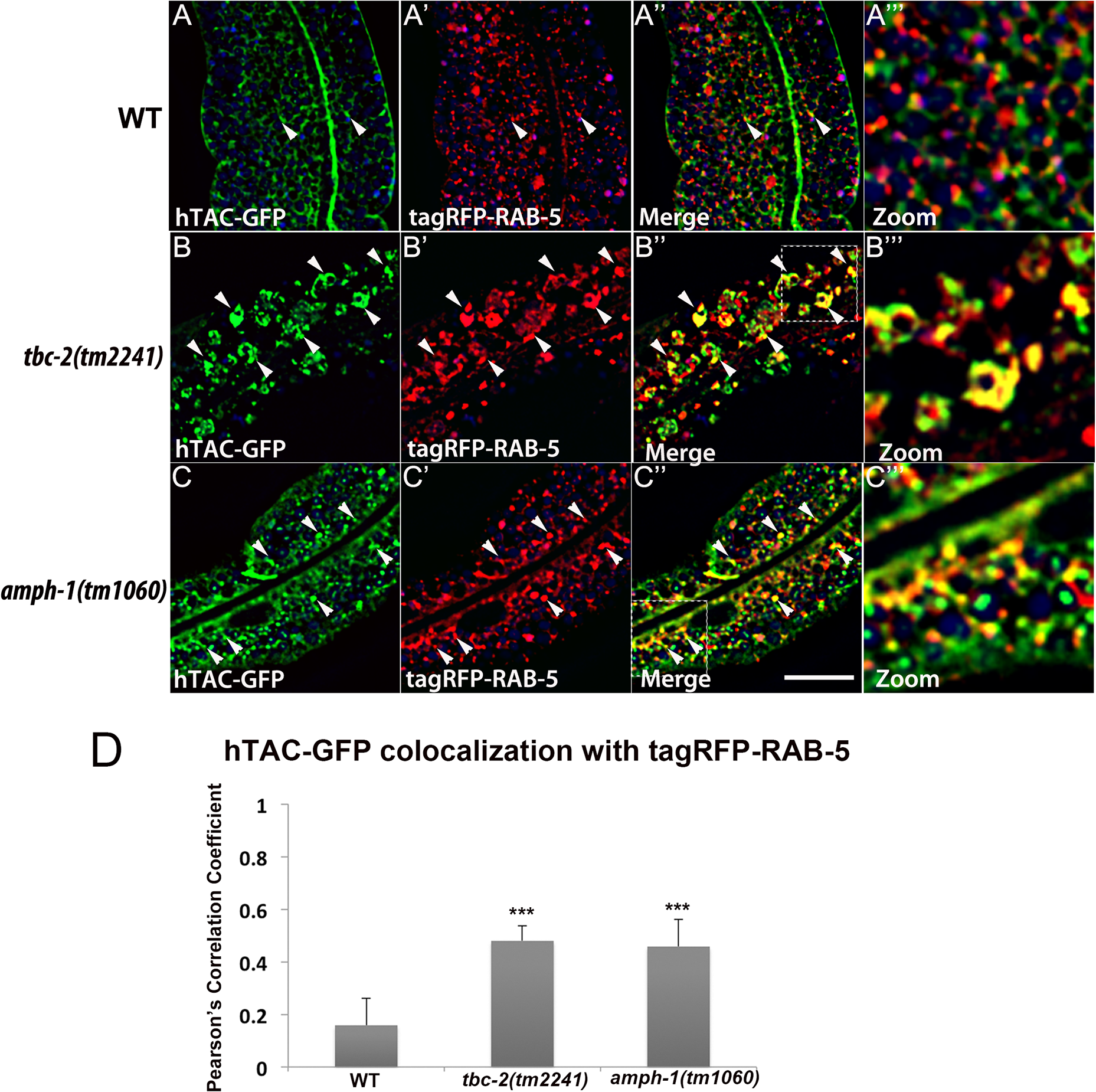 Recycling cargo accumulates in RAB-5 labeled endosomes in <i>tbc-2</i> and <i>amph-1</i> mutants.