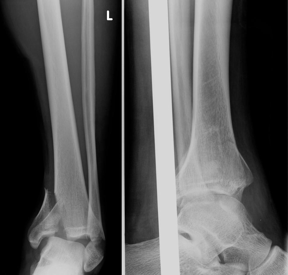 Vstupní rtg recentně po úrazu Fig. 10: Initial X-ray shortly after injury
