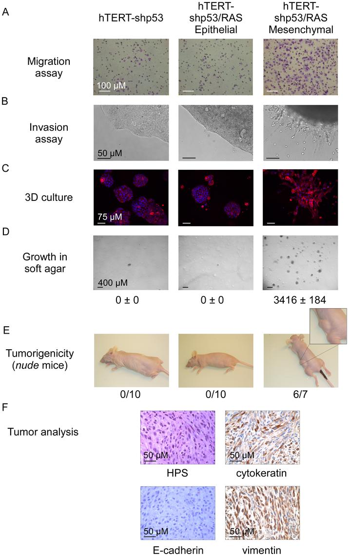 Characterization of epithelial and mesenchymal hTERT-shp53/RAS HMEC-derivative subpopulations.