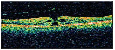 OCT obraz diery makuly II. štádia s evidentnou abláciou zadnej kôry sklovca s operculom a s cystoidným zhrubutím okrajov neurosenzorickej sietnice u pacienta č. 4