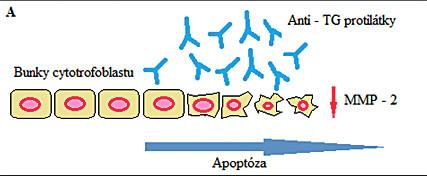 Obr. 3A Obrázok hlavných mechanizmov poškodenia placenty sprostredkovaného anti-tTG protilátkami. Anti-tTG protilátky z materského krvného obehu sa viažu na trofoblast buniek  a indukujú proapoptotické poškodenie (A). Na materskej strane sa anti-tTG protilátky viažu na endotelové bunky endometria a môžu spôsobiť dramatickú dezorganizáciu F-aktínu cytoskeletu a následný negatívny angiogénny proces (B).