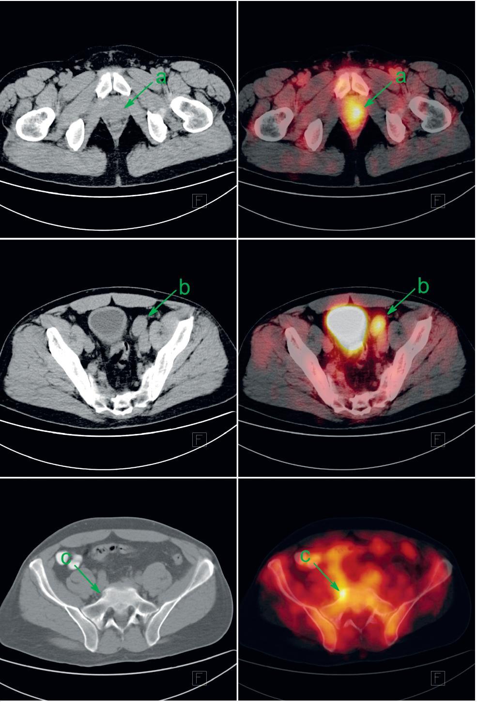 Pacient s biopticky ověřeným anaplastickým karcinomem prostaty byl v rámci iniciálního stagingu indikován k FDG-PET/CT. Patologicky zvýšená konsumpce glukózy v prostatě (a), zvětšené parailické uzlině vlevo (b) a v drobné kostní lézi sakra vpravo (c) svědčí pro generalizaci karcinomu prostaty. V močovém měchýři a ve střevech je akumulace FDG fyziologicky zvýšená. Vlevo CT v režimu nízké dávky, vpravo jeho fúze s FDG-PET. Fig. 1. Patient with bioptically proven anaplastic prostate cancer was investigated by FDG-PET/CT as a part of initial staging. Abnormally increased glucose consumption in prostate (a), in enlarged left parailiac lymph node (b) and discrete bone lesion of the sacrum (c) represents metastatic prostate cancer. Increased FDG uptake in urinary bladder and gut is a normal variant. Left: low-dose CT; right: fusion of low-dose CT with FDG-PET.
