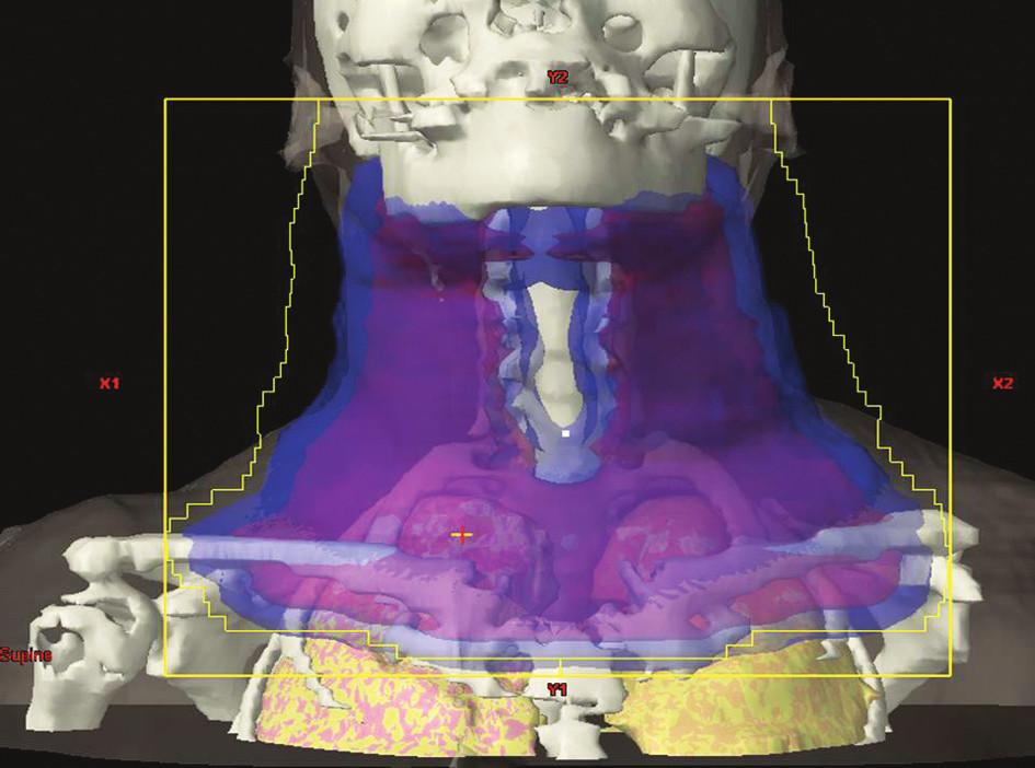 IF radioterapie na oblast krčních, nadklíčkových a podklíčkových uzlin oboustranně. Obrázek pochází z archivu Kliniky radiační onkologie Masarykova onkologického ústavu