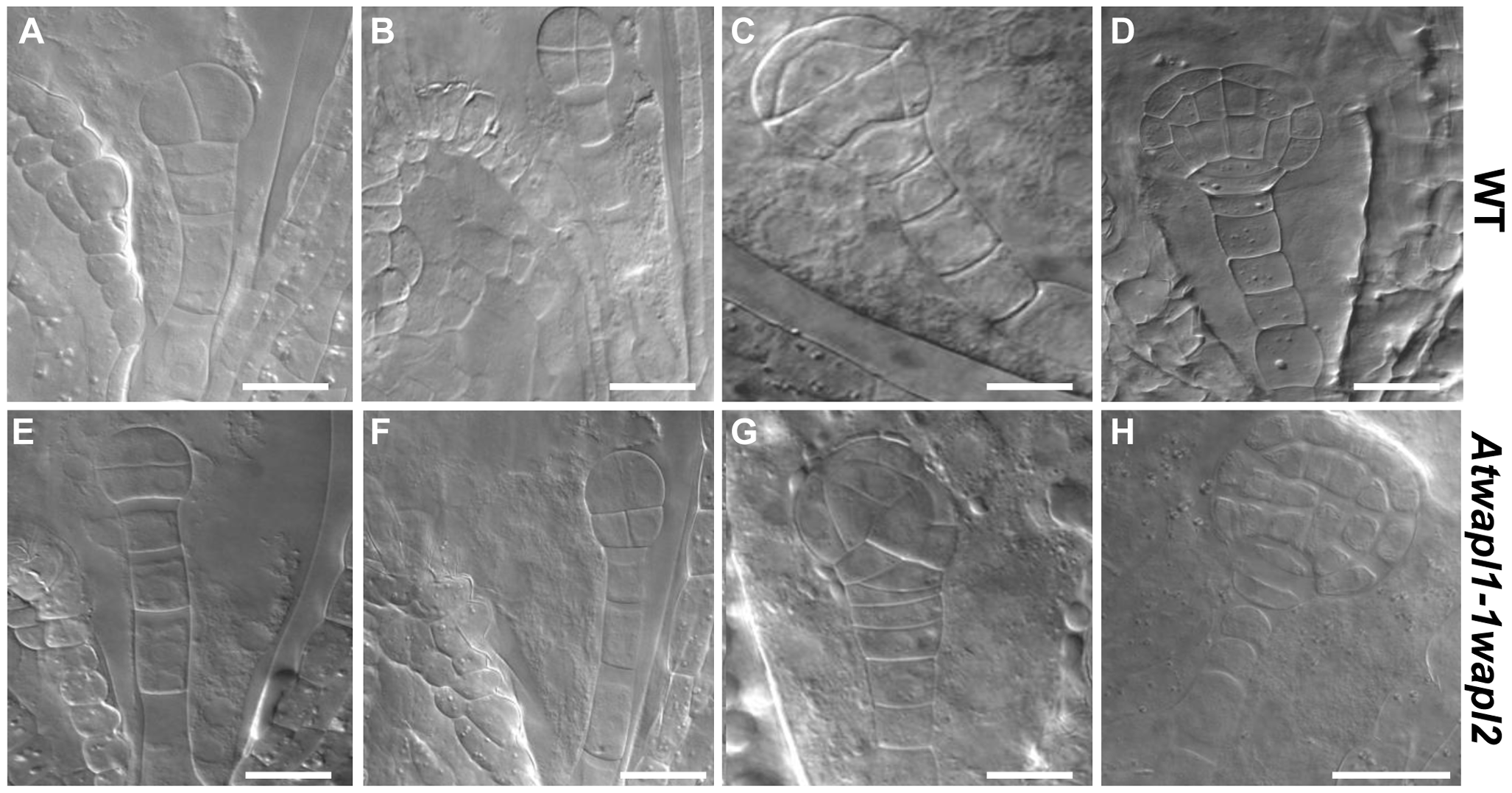 Embryonic patterning is defective in the seeds of <i>Atwapl1-1wapl2</i> plants.