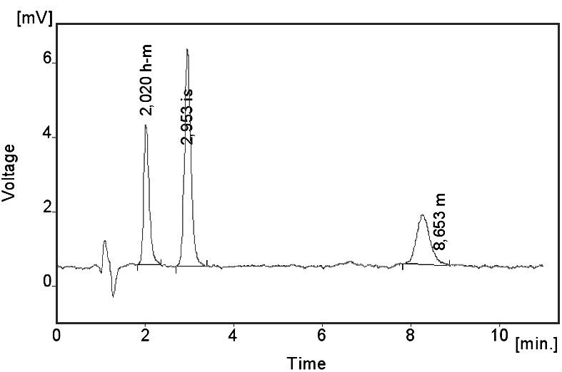 Chromatogram pacientského vzorku – koncentrace metoprololu (m) 84,8 ng/ml a koncentrace α-hydroxymetoprololu (h-m) 162,7 ng/ml
