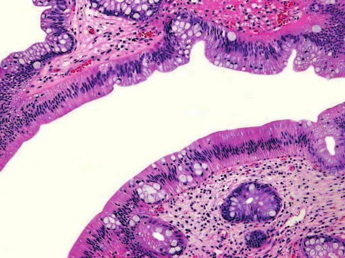 Tradiční serrated adenom. Povrchový epitel s eozinofilní cytoplazmou a s centrálně uloženými protáhlými jádry (HE, objektiv x20).