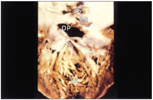 Levá síň a komora po operaci defektu septa síní typu ostium primum. Rozštěp cípu mitrální chlopně.