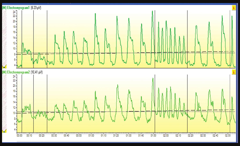 Elektromyogram: Svaly panvového dna oslabené na 2. stupeň svalovej sily.
