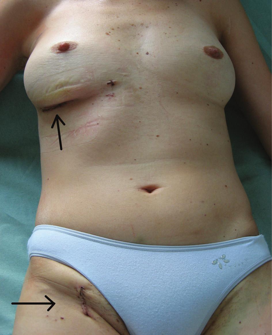 Výsledný kosmetický efekt Minitorakotomie a rána v třísle. Fig. 3: Postoperative aesthetic appearance  Minithoracotomy and the wound in the groin.