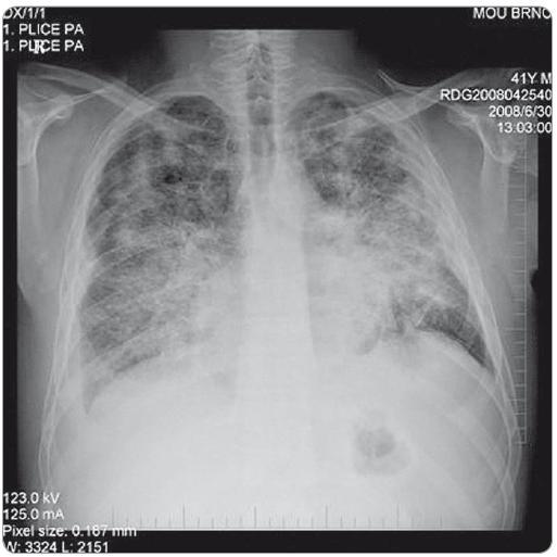 RTG snímek plic – zadopřední projekce. Snímek proveden v době progrese onemocnění po 2. sérii iniciální chemoterapie, před zahájením cílené protinádorové léčby. Na snímku je patrná rozsáhlá převážně intersticiální infiltrace obou plicních křídel - nehomogenní cárovité splývající infiltráty, nejvýraznější a nejsytější vlevo ve středním plicním poli. Fluidothorax vpravo, nově nepatrně i vlevo. Metastatické postižení skeletu. (Vyšetření provedla: MUDr. Monika Procházková).