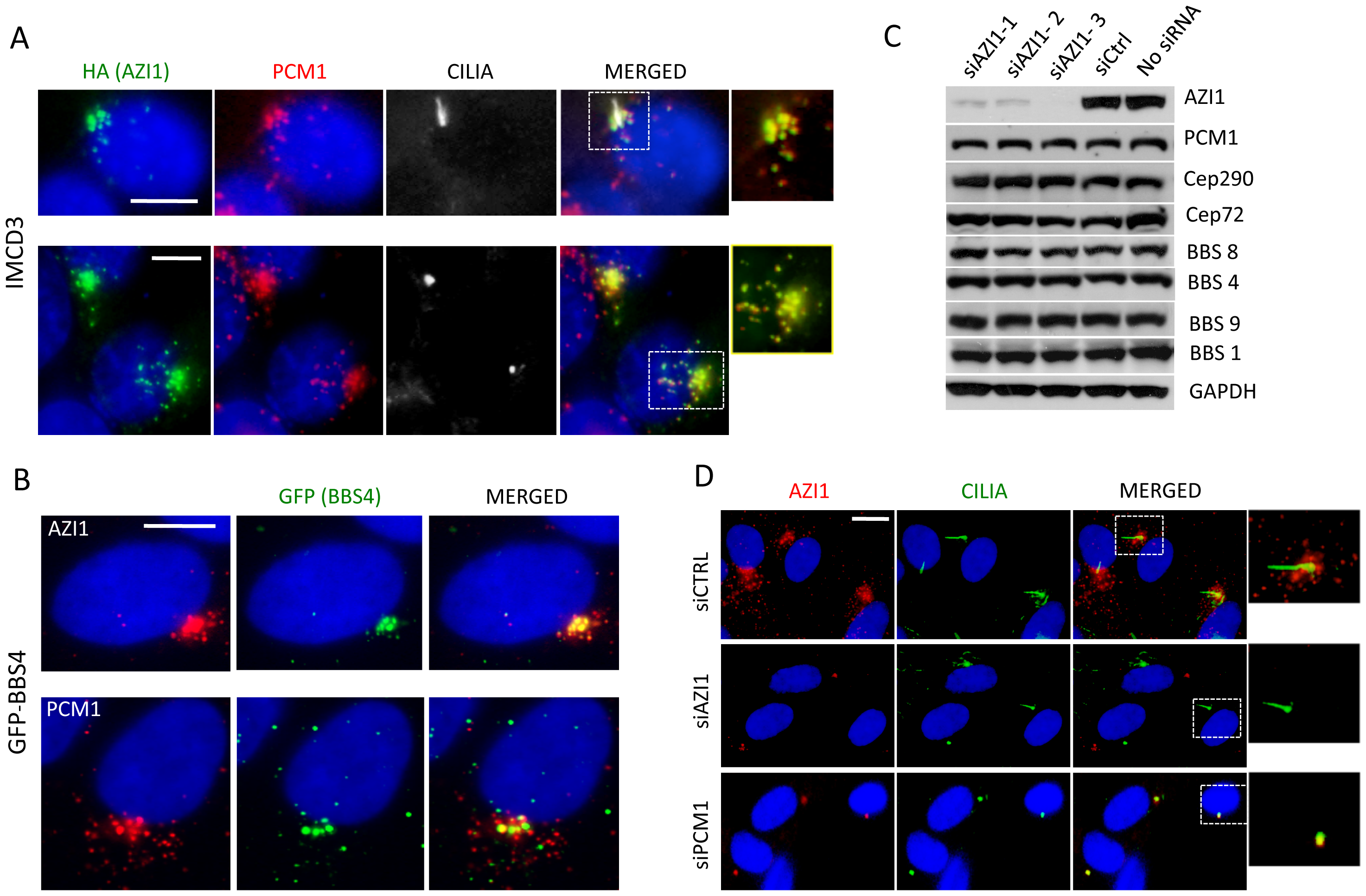 AZI1 co-localizes with BBS4 to the centriolar satellite.