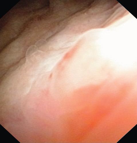 Cystoskopie čtyři měsíce po operaci Fig. 6. Cystoscopy four months after TUR