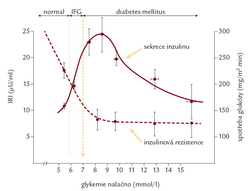 Sekrece inzulinu a inzulinová rezistence v průběhu zhoršování glukoregulační poruchy.  Inzulinová rezistence – měřena pomocí spotřeby glukózy během hyperinzulinového euglykemického clampu; sekrece inzulinu – měřena pomocí hladin imunoreaktivního inzulinu (IRI); IFG – impaired fasting glucose (hraniční glykemie nalačno).