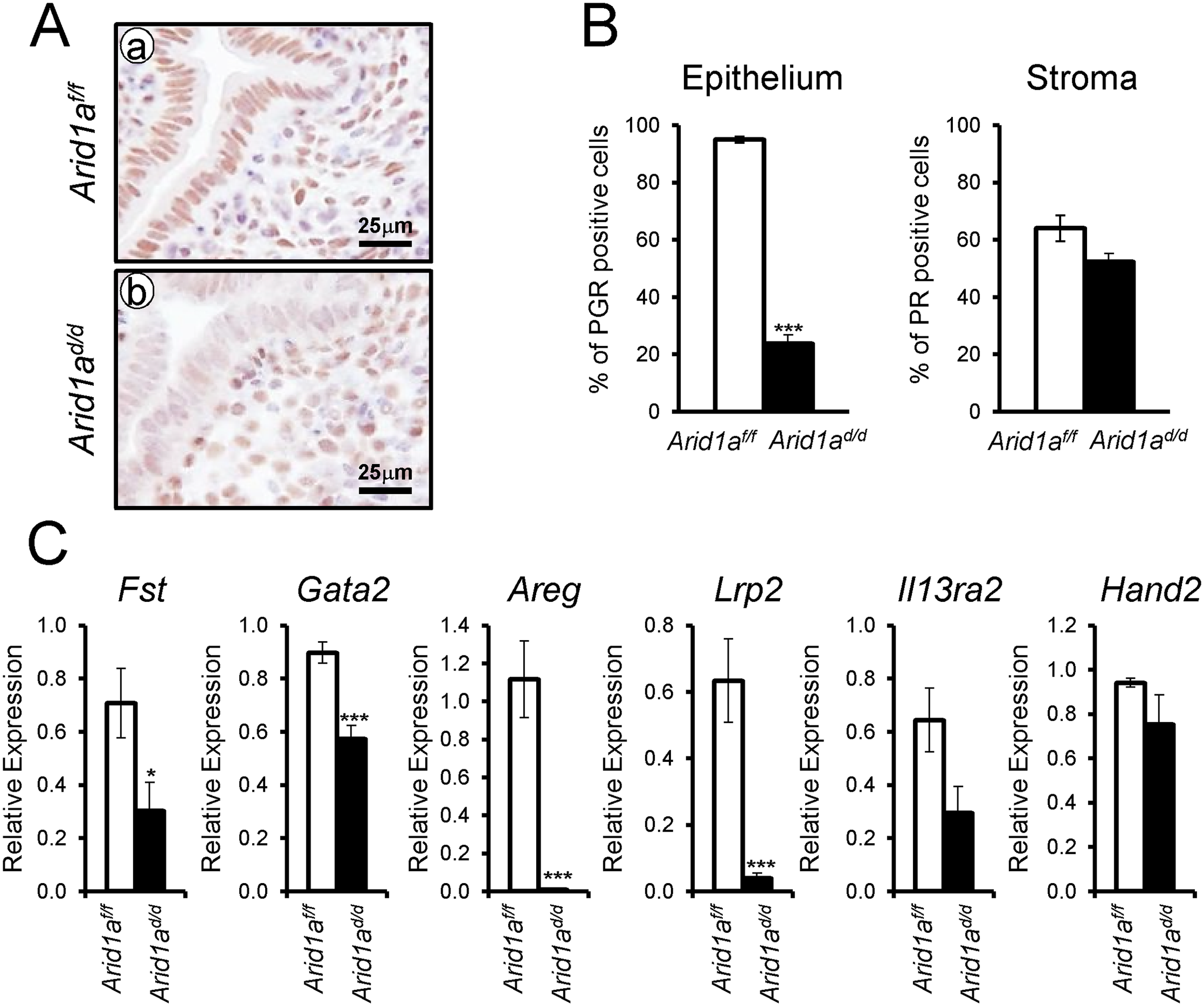 Decreased epithelial PGR expression in <i>Arid1a</i><sup><i>d/d</i></sup> mice.