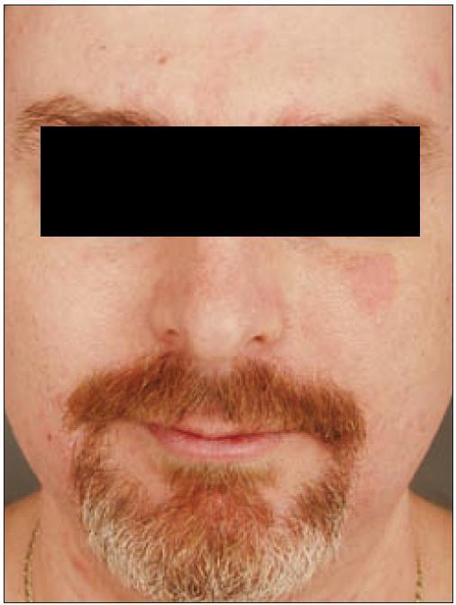 Diskrétní seborrhoiformní ložisko na levé tváři u diseminované multifokální histiocytózy.