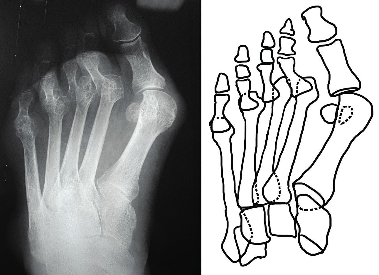 Předozadní rentgenový snímek přednoží s destrukcí hlaviček metatarzů a luxací II. až V. metatarzofalangeálního skloubení; patrná hallux valgus deformita palce nohy, varózní postavení I. metatarzu se zvětšením prvního intermetatarzálního úhlu.