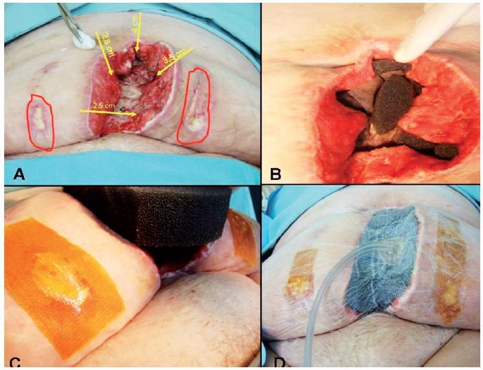 Nasadenie NPWT terapie. A – rana pred nasadením NPWT – dĺžka 16 cm, hĺbka 6 cm, šírka 10,4 cm (sínusy veľkosti 2,8 cm; 4 cm; 3,5 cm; 2,5 cm); B – vyplnenie sínusov PUR penou, spodina vypodložená sieťovinou so striebrom; C – ošetrenie dekubitov po ventrofiloch; D – naloženie NPWT