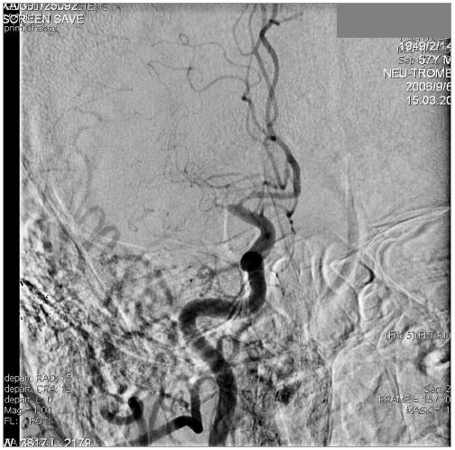 DSA snímek pravé ACC v AP projekci, uzávěr oblasti M1 embolem. Normálně se plní pravá a. cerebri anterior.