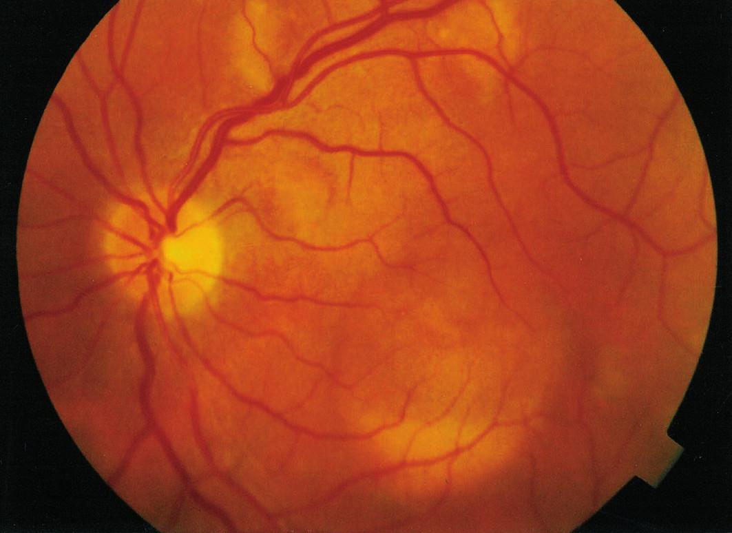 Obr. 1 b Makulárne a extramakulárne viteliformné ložiská. Ľavé oko r. 1996