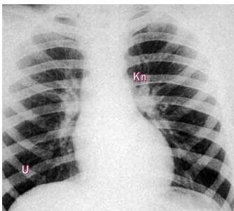 Skiagram u koarktace ukazuje plochý aortální knoflík.