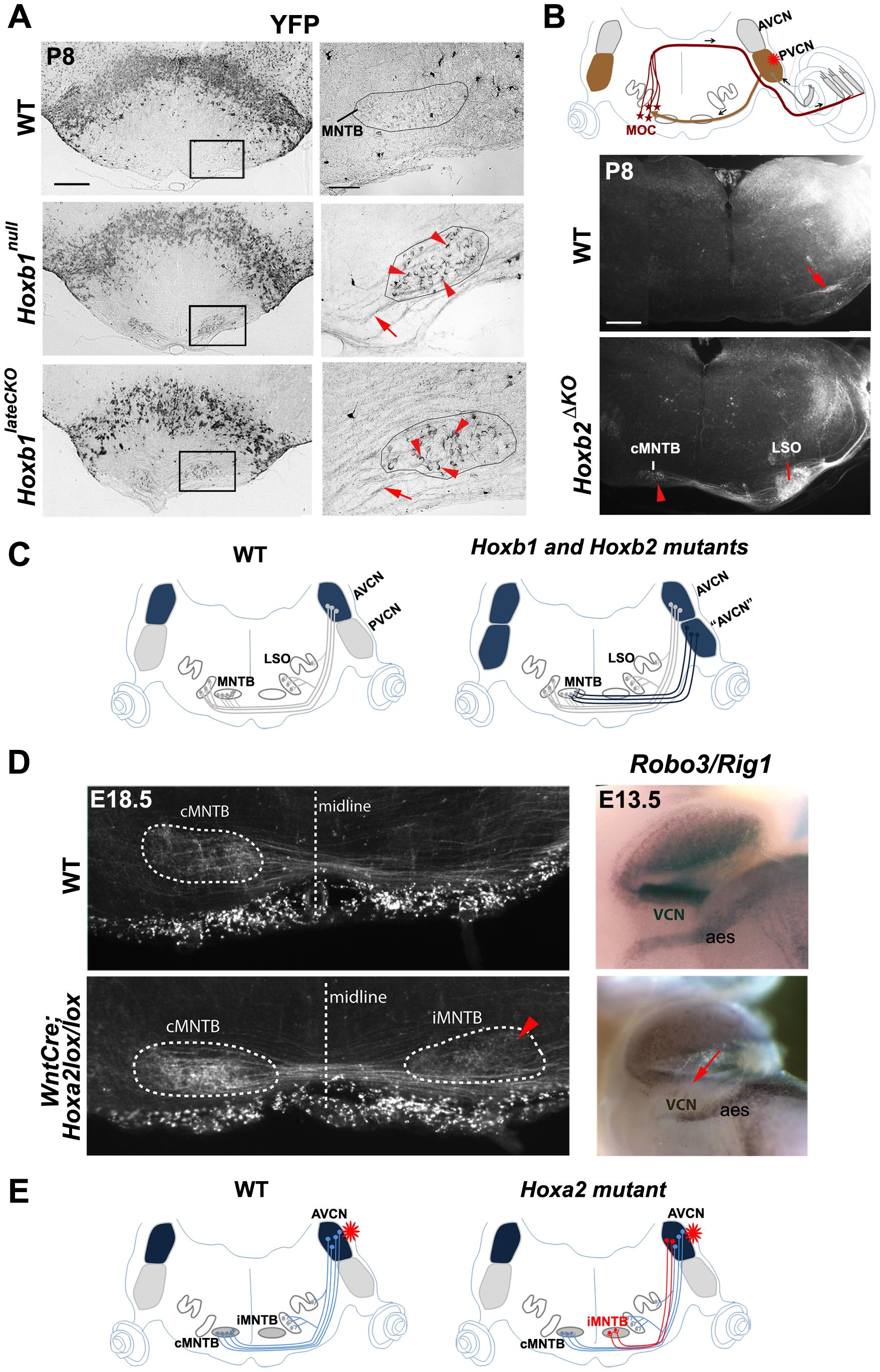 Abnormal cochlear connectivity in <i>Hoxb1</i>, <i>Hoxb2</i> and <i>Hoxa2</i> mutants.