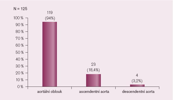Počty pacientů podle lokalizace postižení .