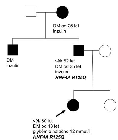 Rodokmen rodiny nesoucí mutaci v genu HNF4A. Probandem byla 13letá pacientka s náhodným záchytem DM. Markery autoimunitní inzulitidy byly negativní a pozitivita C-peptidu trvala déle než 3 roky. Diabetes mellitus se v rodině vyskytoval ve 3 generacích. Jedinci byli vedeni pod diagnózou diabetes mellitus 1. typu a měli závažné diabetické komplikace. Babička a strýc probandky odmítli podstoupit genetické vyšetření.