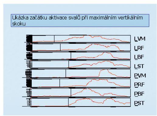 Ilustrativní ukázka aktivace vybraných svalů dolních končetin při maximálním vertikálním skoku. Vyšetřované svaly: L – svaly na levé dolní končetině, P − svaly na pravé dolní končetině, VM − m. vastus medialis, RF − m. rectus femoris, BF − m. biceps femoris, ST − m. semitendinosus. Začátek aktivace byl hodnocen softwarově pomocí programu MyoResearch XP Master Version 1.03.05. Začátek aktivity (dosažení 10% hodnoty maximálního peaku amplitudy během prováděného pohybu + hodnota klidové aktivity) je označen pro každý sval značkou.